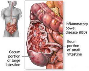 انسداد روده چیست و درمان